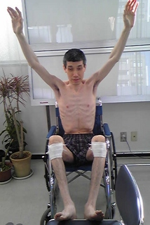 Toru Goto at hospital hands up on wheelchair.jpg